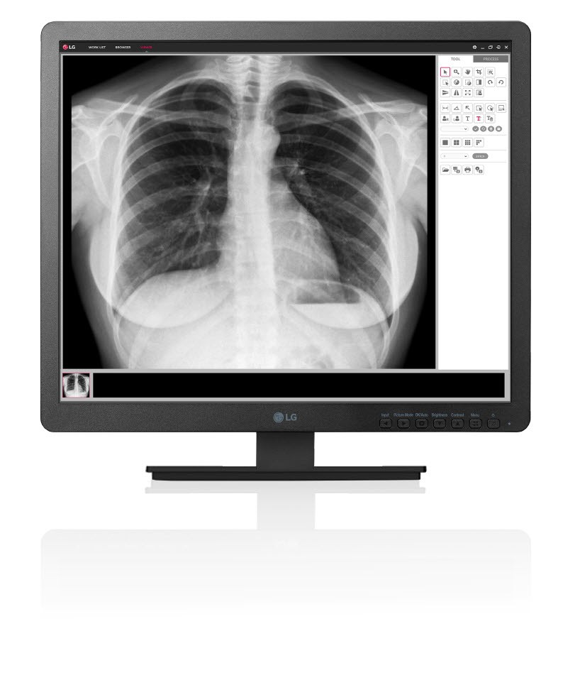 A front view of LG Clinical Review Monitor model 19HK312C displaying an X-ray of a person's chest